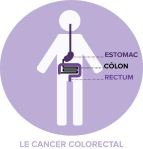 le cancer colorectal localisation